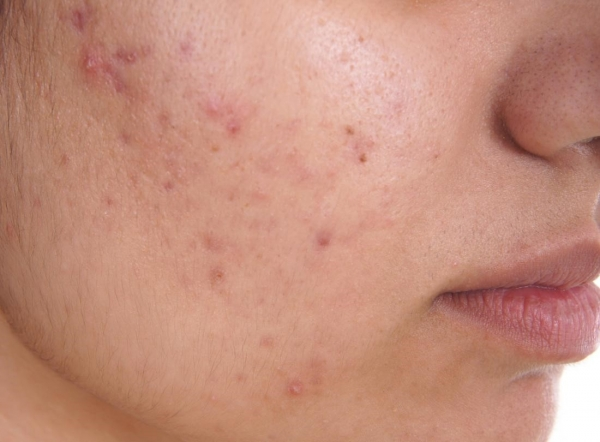 Acne: Do something about it!
